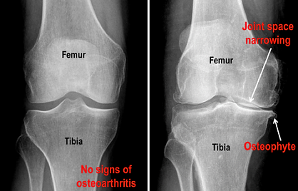 Physio Penrith osteoarthris.png