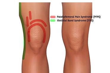 Physio Penrith Patellofemoral Pain Syndr