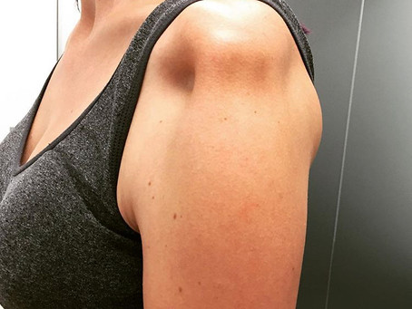 An Painful & Unstable Shoulder | Physio Penrith