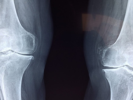 What You Can Do About Knee Osteoarthritis | Physio Penrith