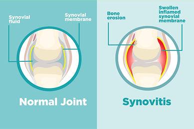 Knee osteoarthritis synovitis Physio Pen
