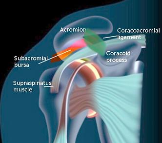 Physio for shoulder bursitis Penrith.png