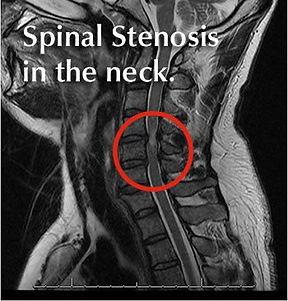 Neck pain stenosis physio Penrith.jpg