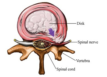 Physio for Disc Protrusion Penrith.png