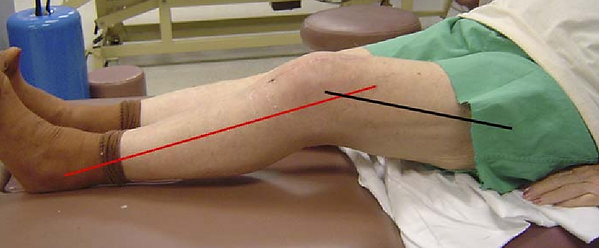 Physio Penrith knee flexion contracture