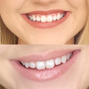 gummy smile 10:1.JPG