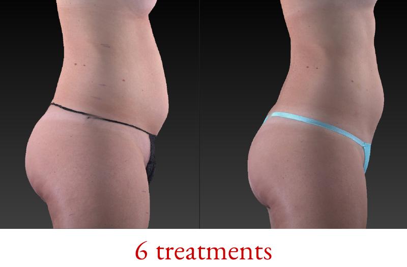 6B_treatments.png