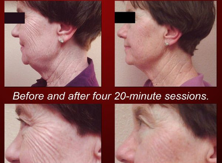 Painless and Affordable Skin Tightening Facelifts