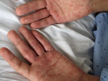 A sífilis aumentou 387% em 5 anos no Brasil