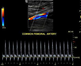 Femoral+Artery+Ultrasound.jpg