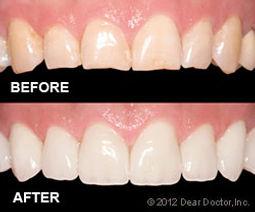 veneers-before-after.jpg