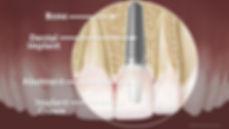 dental-implant-anatomy-large.jpg