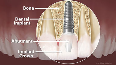 dental-implant-anatomy-large.jpg
