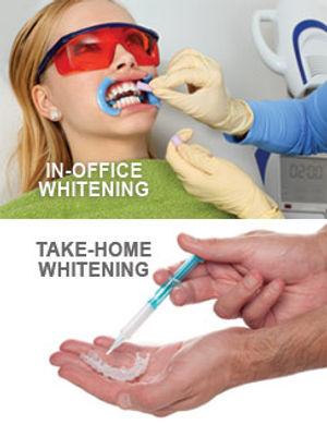 teeth-whitening-options.jpg