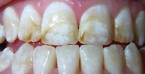 Fluorose Dental. Você sabe o que é?