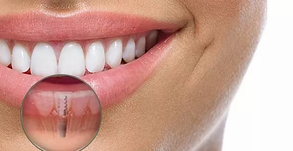 Implante Dental ou a terceira dentição