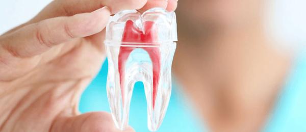 endodontia-tratamento-de-canal-dentario_
