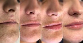 Construindo os lábios de forma natural