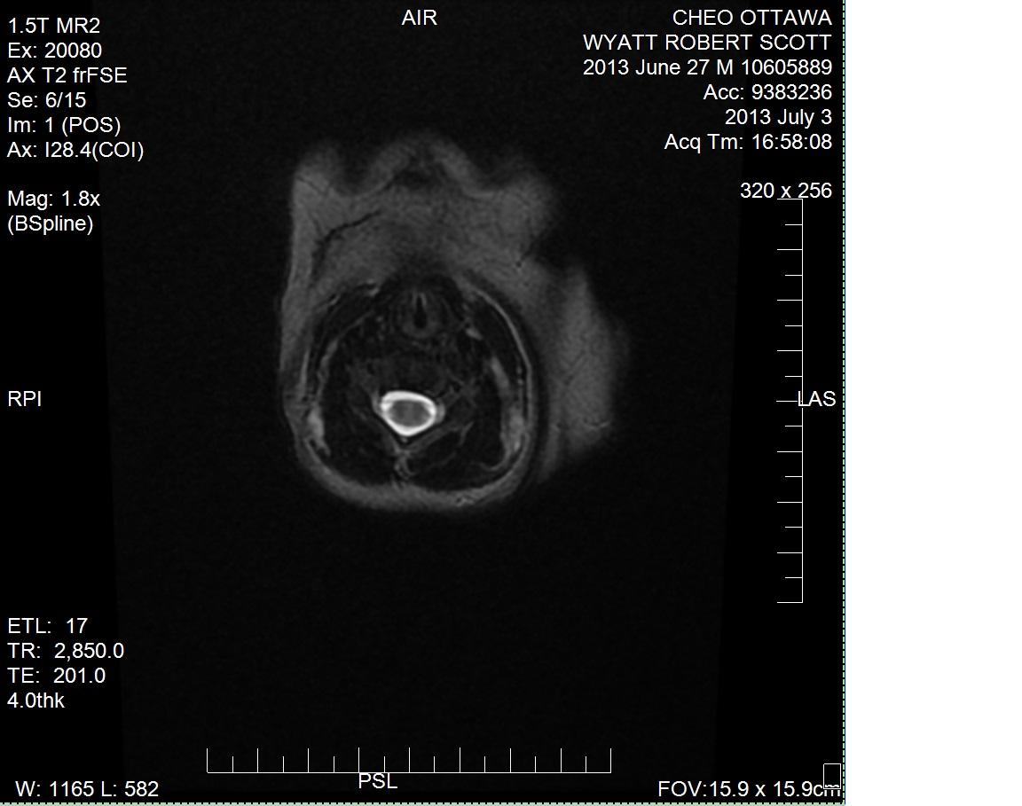 MRI_AIR_AXT2frFSE (V2).jpg