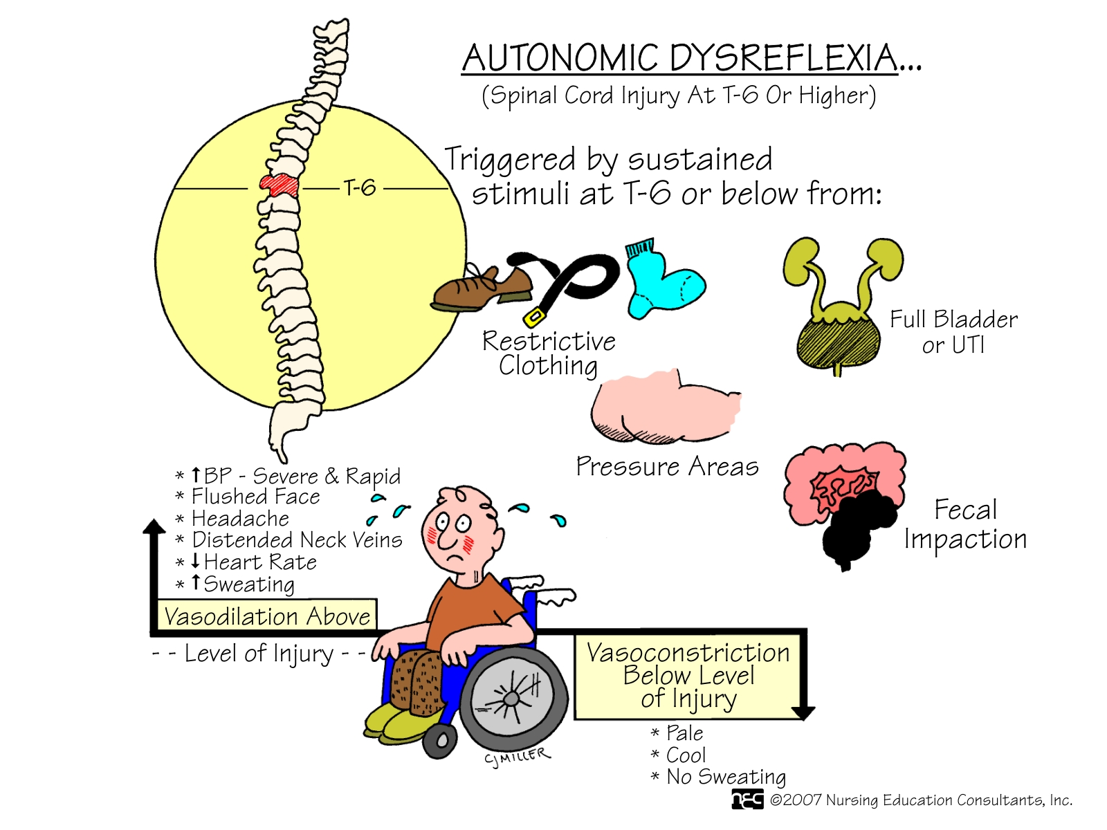 Hereditary Sensory Autonomic Neuropathy