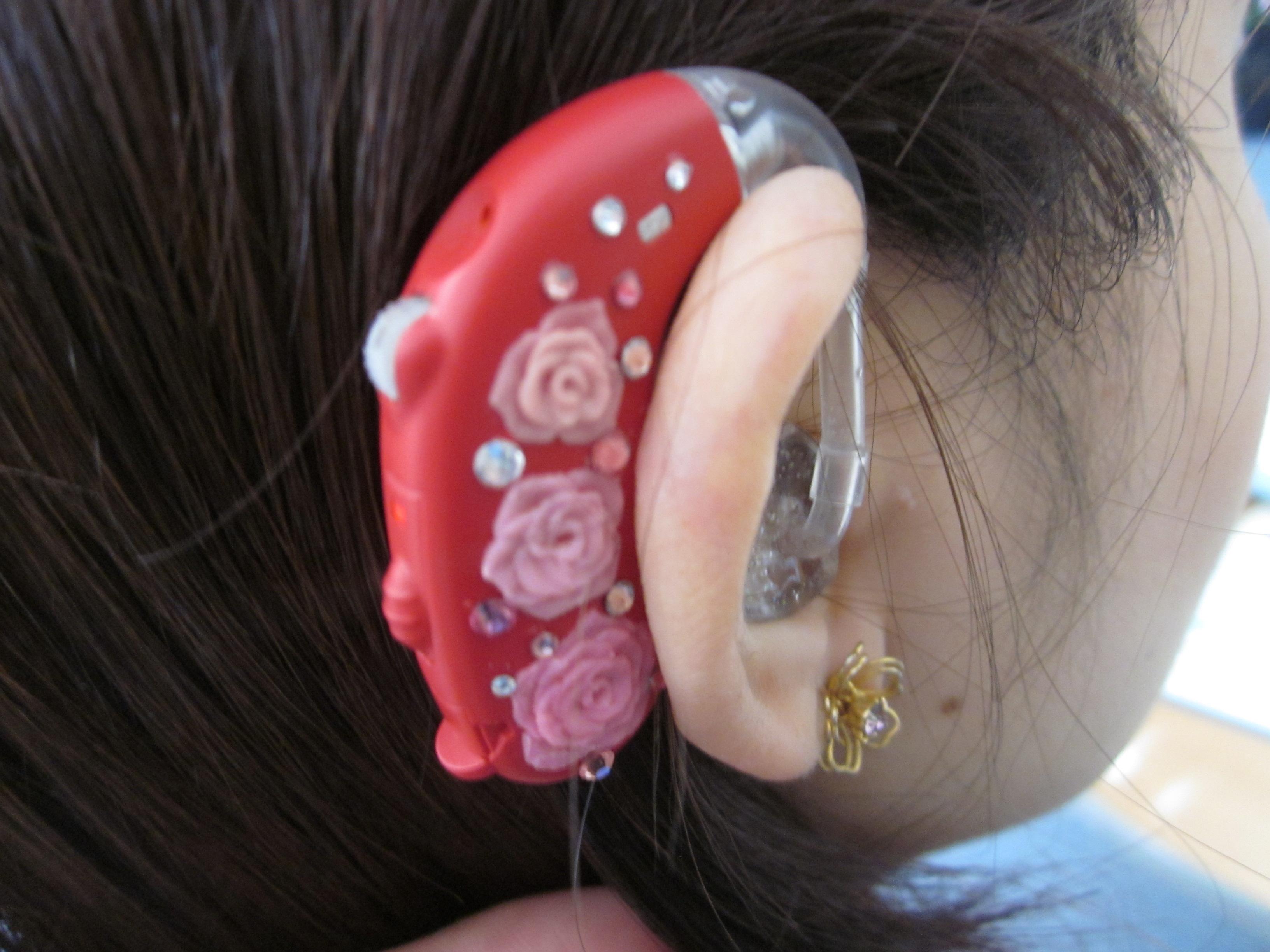 デコ補聴器 11