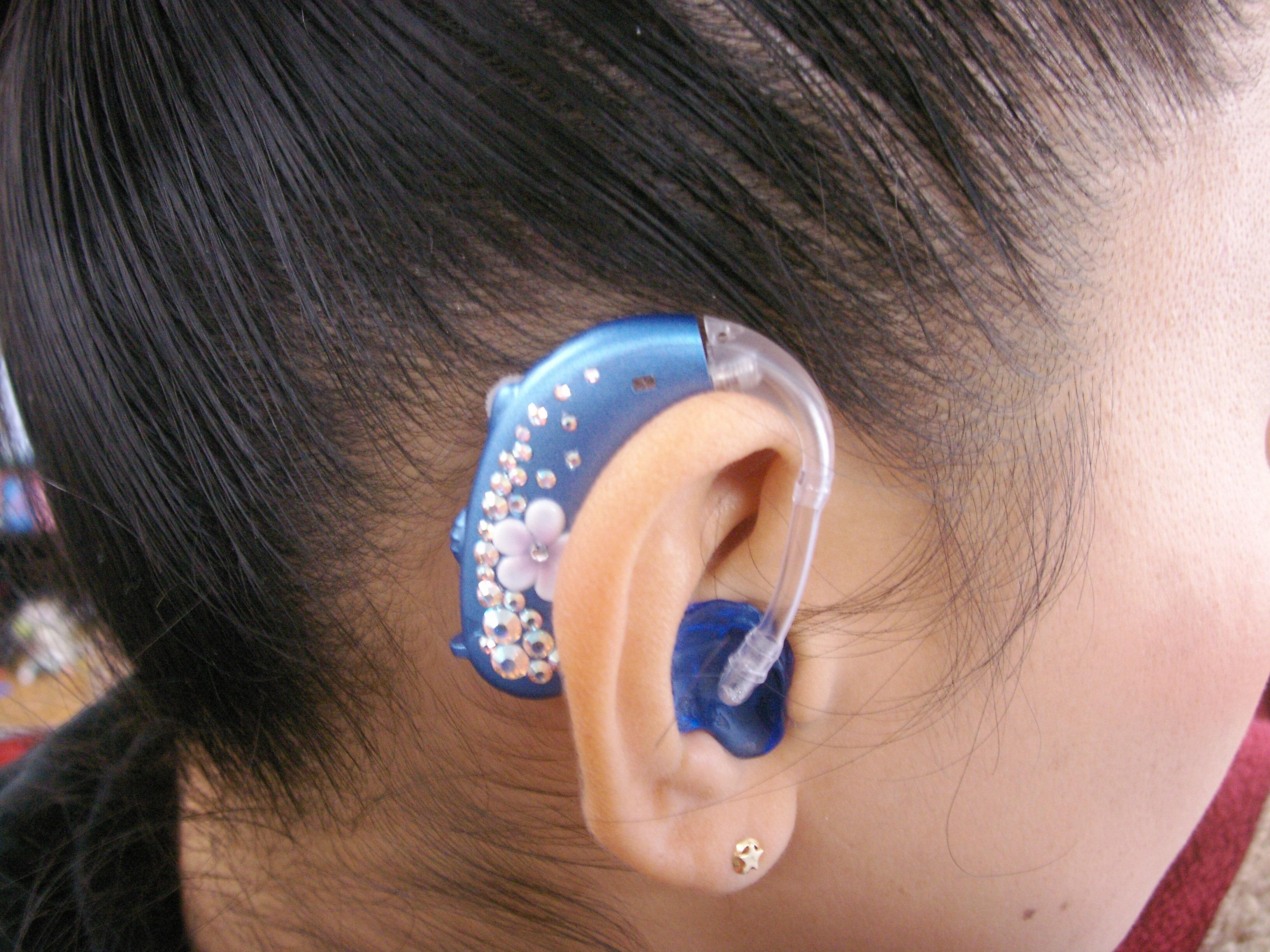 デコ補聴器 08