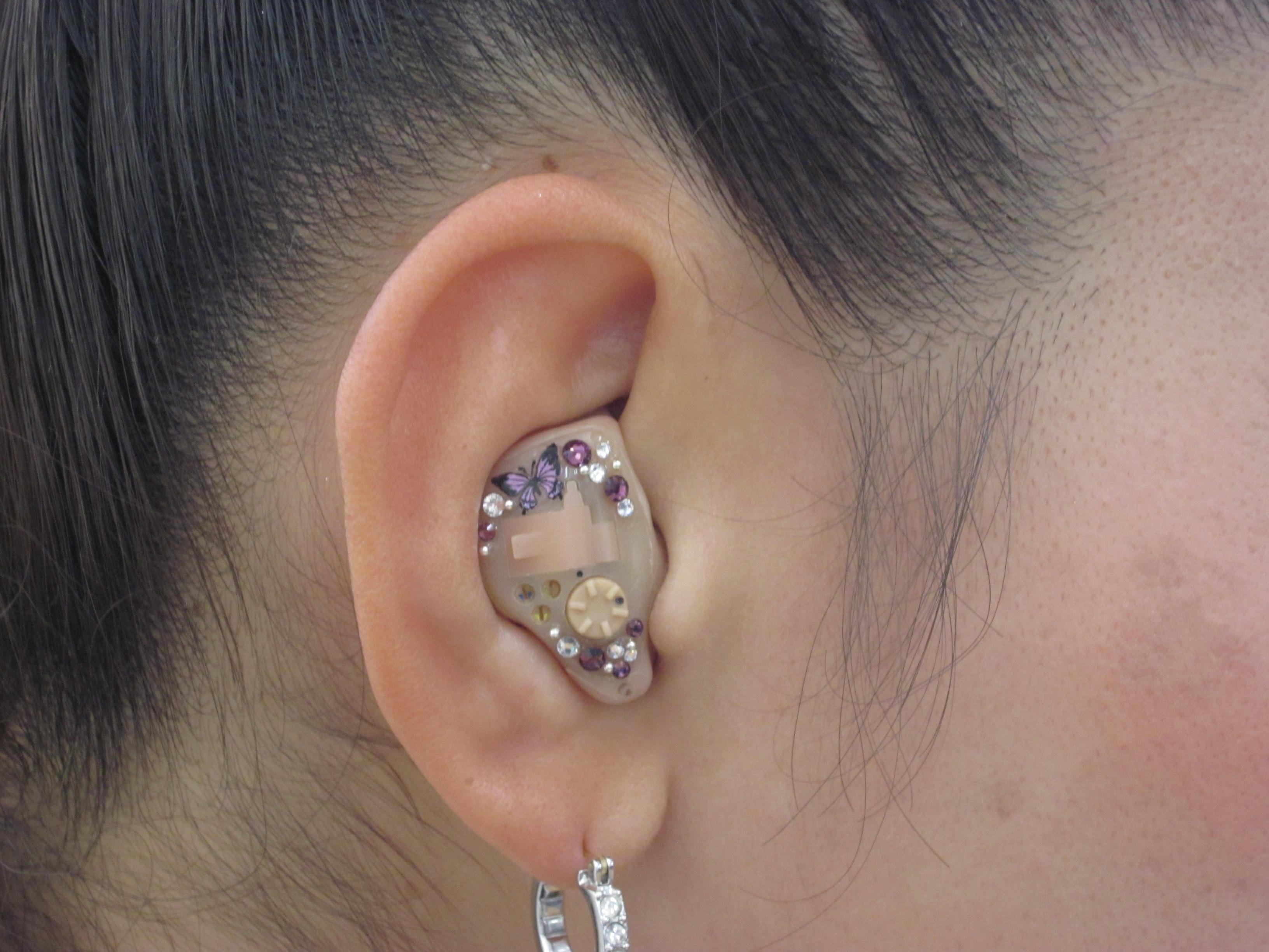 デコ補聴器 13
