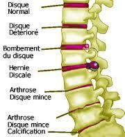 Hernie discale sciatique douleur sciatalgie lombalgie carpien nerf femoral sacrum bassin cervicales massage kiné réeducation neudorf strasbourg dos ostéopathe