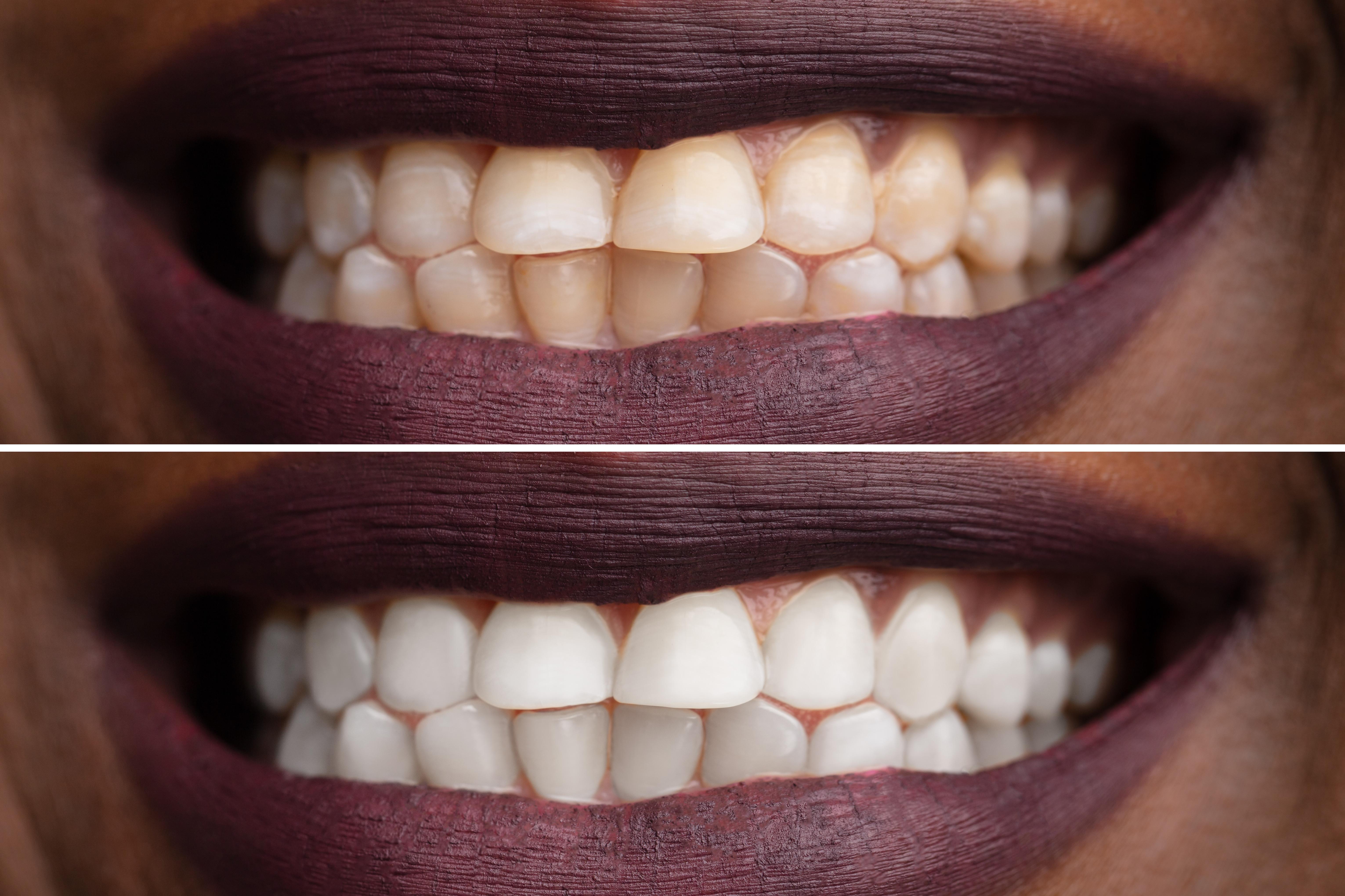 Teeth Whitening Training