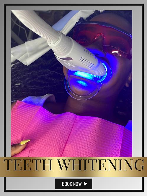 Online Teeth WhiteningW/ NO KITS
