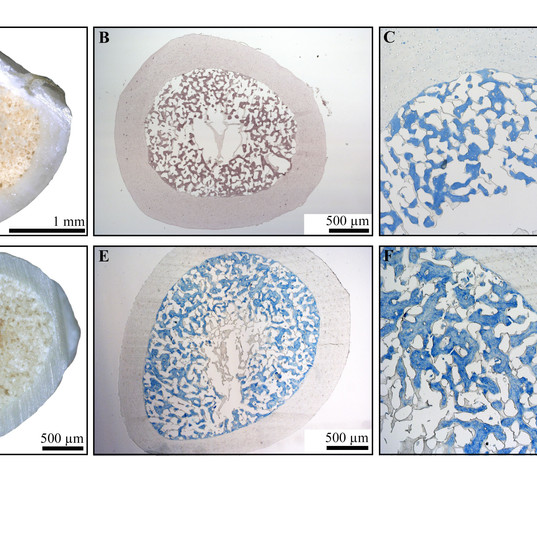 Figure 1 - Chemical staining - MB.jpg