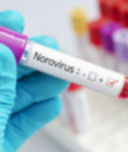 Norovirus protection React infection con