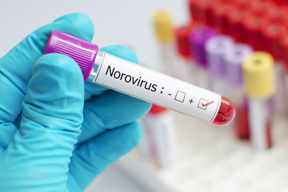 Norovirus infection control from React