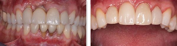 periodoncia-antes-y-despues1.jpg