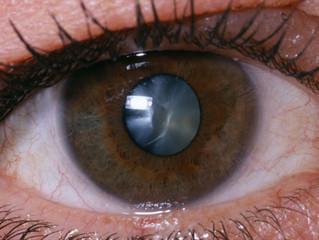 Dispelling the Cataract Myth