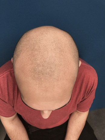 Before Scalp Micropigmentation