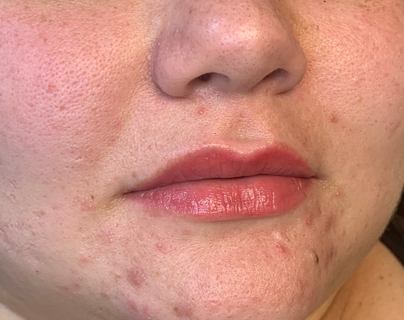 Micropigmentation- Lips