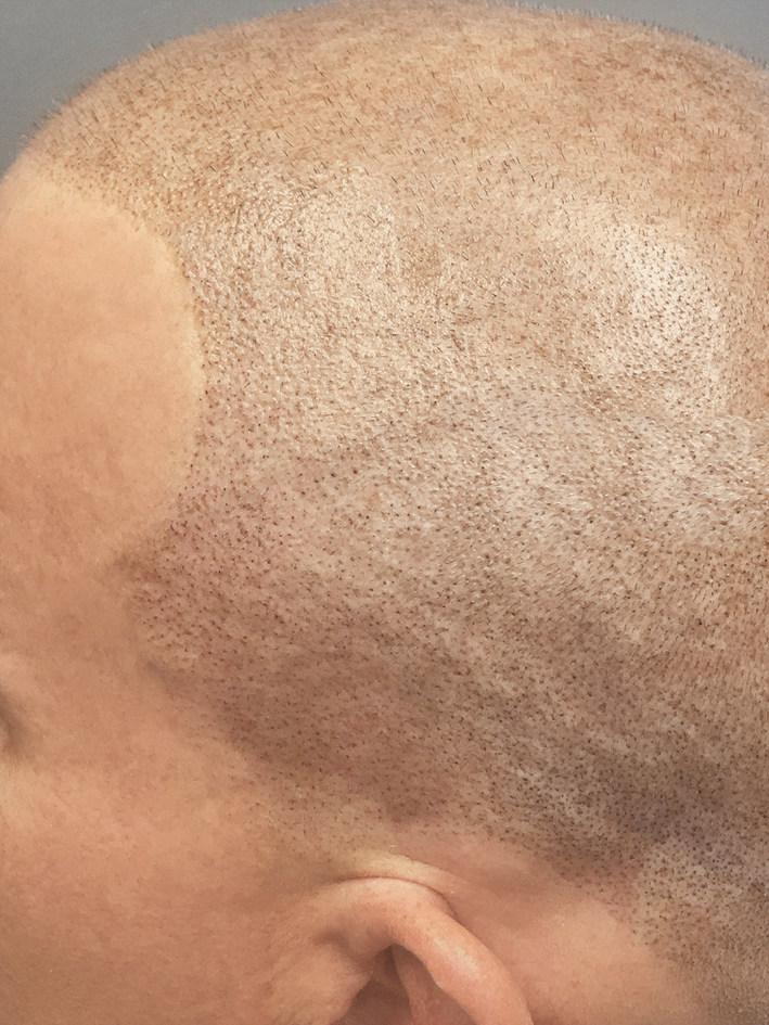 Side Profile of Scalp Micropigmentation