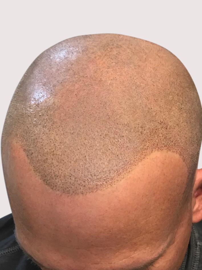 New Conservative Micropigmentation Hairline