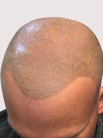 New Conservative Micropigmentation Hairline
