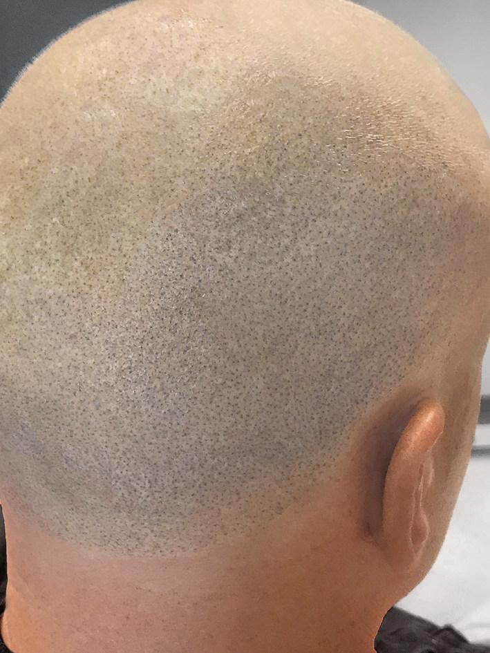 Back of Hairline