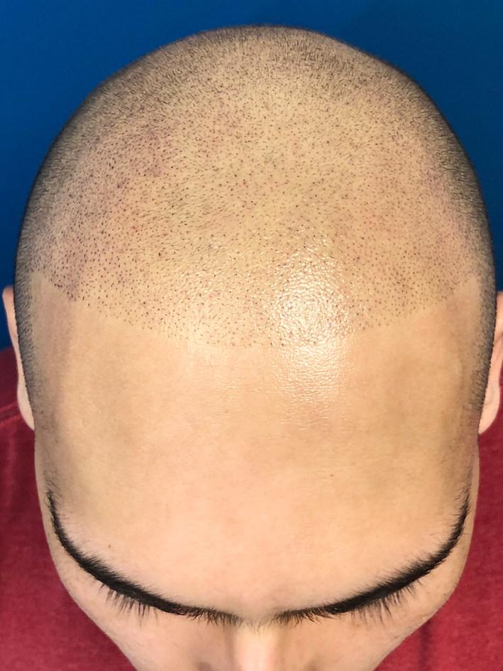 New Micropigmentation Hairline