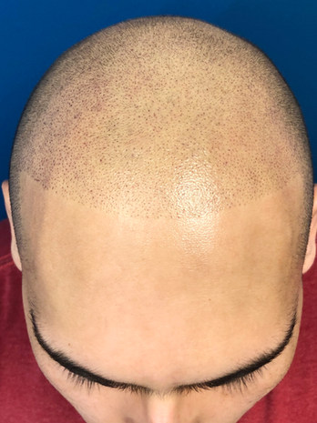 New Micropigmentation Hairline