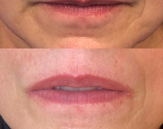 Lip Micropigmentation