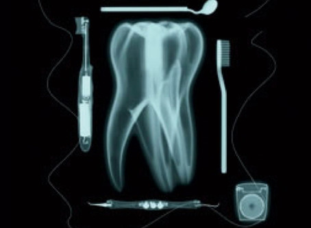 Why do we need Dental X-rays?