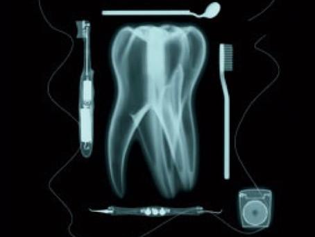 Why do we need Dental X-rays?