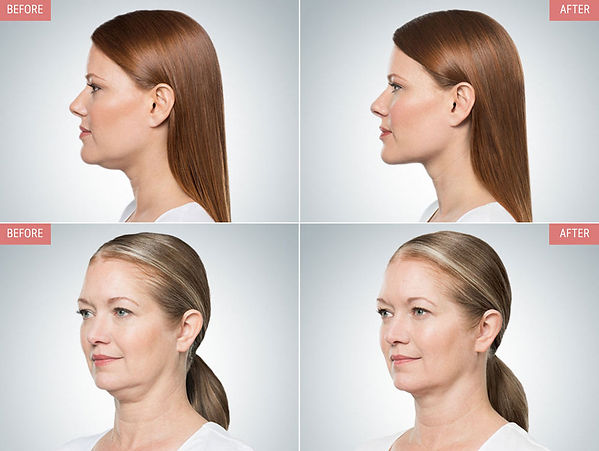 non-surgical-double-chin-reduction-encin