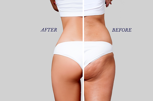 Cryo-One-Arrivederci-Cellulite.png