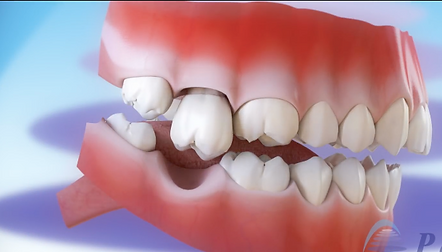 teeth movement after extraction.png