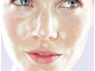 Algunos pasos para tratar la piel sensible y grasa con acné